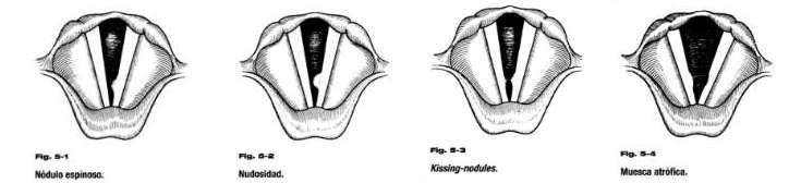 Que son los Nódulos en la garganta